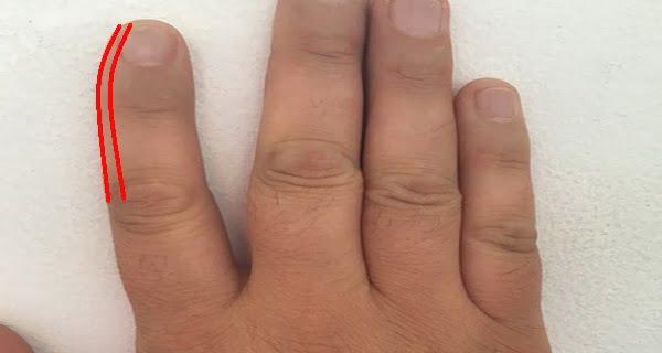 először fogyjon az ujjakban