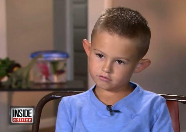 Az Elf fülűnek csúfolt kisfiút plasztikai sebészhez vitték szülei. Nézd meg, hogyan néz ki a műtét után!