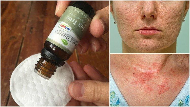 A teafaolaj 10 felhasználási módja, hogy meggyógyítsd a bőr mindenféle betegségeit!
