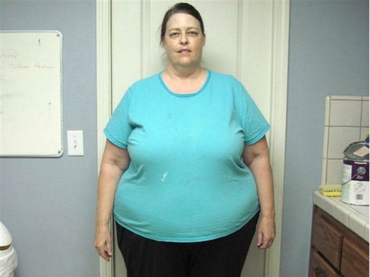 59 évesen 180 kg hízott ez a nő, amikor úgy döntött ideje lefogyni. Rá sem fogsz ismerni, olyan csinos lett!