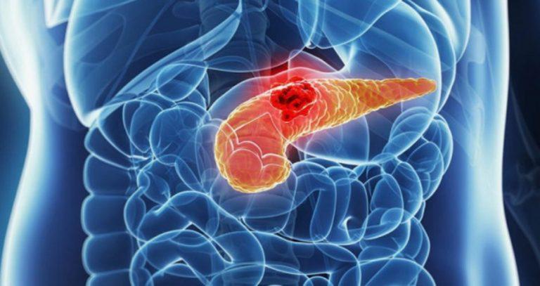 A hasnyálmirigyrák alattomos betegség, mert nem okoz fájdalmat. Ám mégis van pár tünete