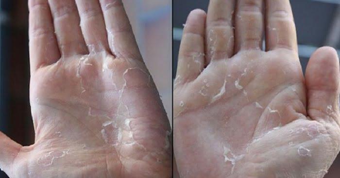 Száraz kéz ápolása: készítsd el ezt a krémet otthon, egyszerűen!
