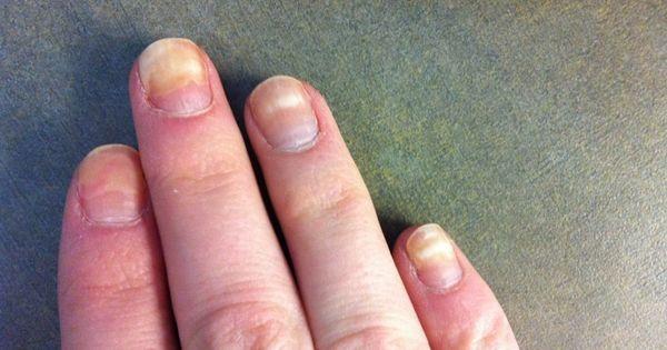 Mit jelez, ha elszínezőik a körmünk, vagy megváltozik a formája?