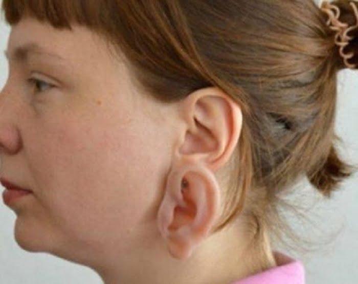 Sokan megbotránkoztak, amikor meglátták, hogy mi van ennek a nőnek a fülén