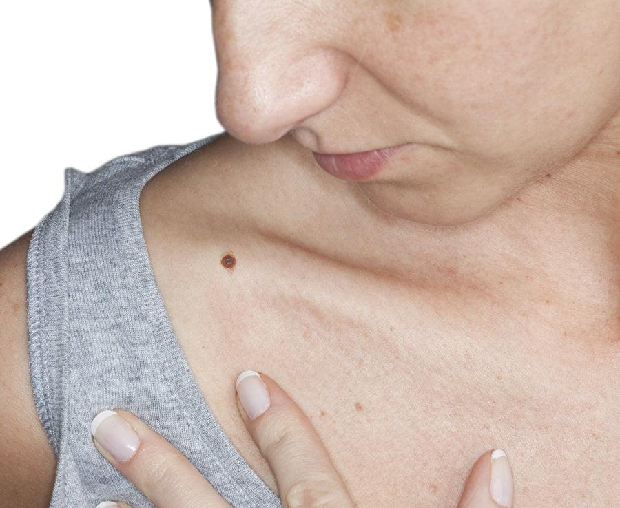 A rák 5 figyelmeztető jele, ami már fiatal korban is jelentkezhet