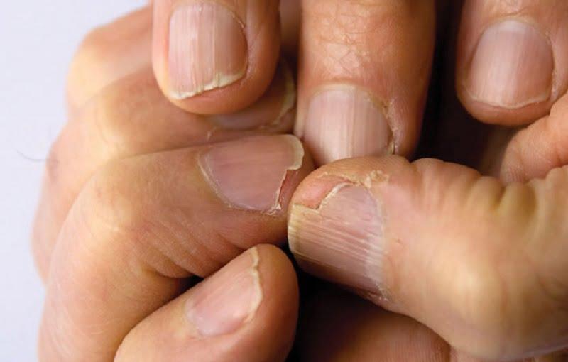 Ez okozhatja a hajhullást és a körmök gyengeségét - azt is megmutatjuk mivel hozd helyre a problémát