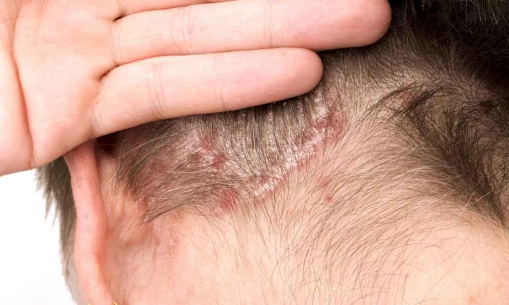 Gyönyörű, hollywoodi sztárok csúnya bőrbetegségben szenvednek