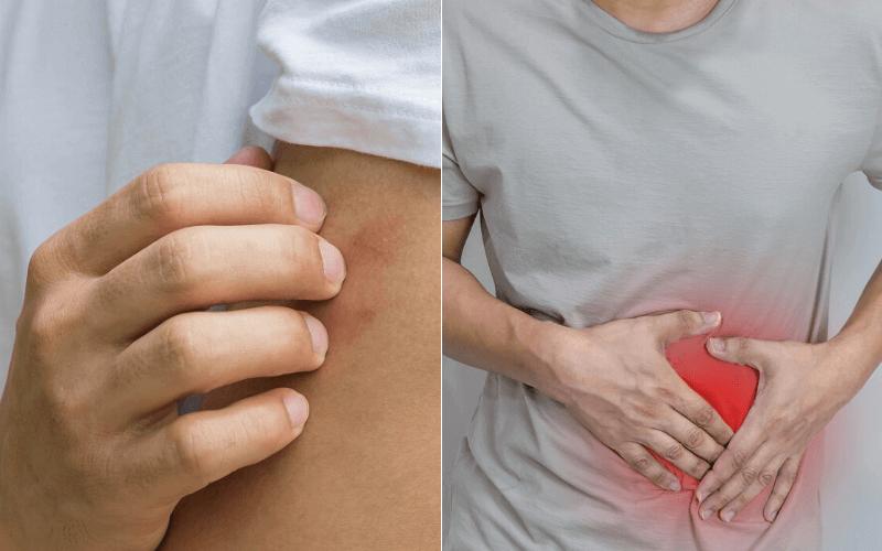 a crohn-betegség mindig súlycsökkenést okoz-e