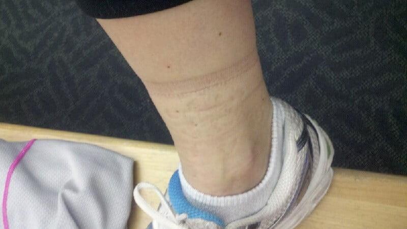 Karcsúsító zokni a visszerekből, Kompressziós harisnya visszerekre   anemzetikonyvekboltja.hu