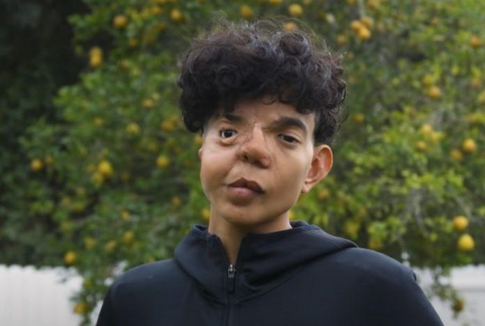 """""""A 37 arcműtétem több 1 millió dollárba került"""" - mondja a fiú, aki úgy született, hogy nem fejlődött ki a fél arca"""