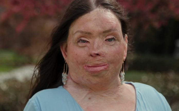 """""""A testem 95%-a megégett"""" - már 80 műtéten van túl a nő, aki 3 évesen szenvedett balesetet"""
