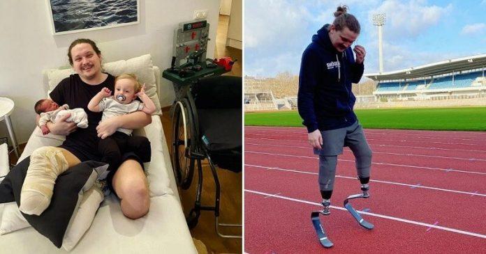 Meggyőzte az orvosokat, hogy eltávolítsák mindkét lábát: